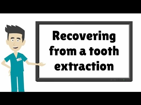 After care for tooth extraction - what to do after a tooth extraction